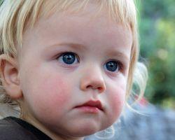 Синусит у детей — симптомы, причины и лечение