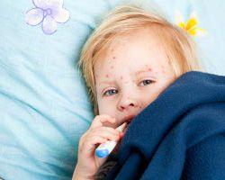 Ветрянка у детей, ее симптомы и лечение
