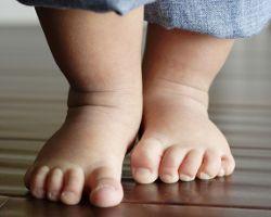 Косолапость у детей — признаки и лечение
